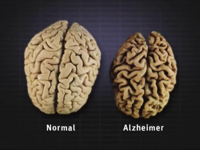Video - Normal Brain vs. Alzheimer's